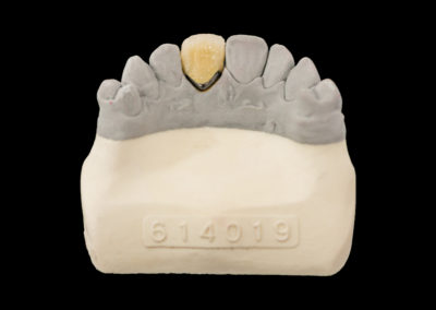 Corona de metal ceramica CAD CAM
