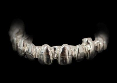 Estructura sobre implantes fresada
